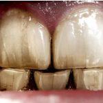 ترکهای مویی دندان یا کریز لاینها