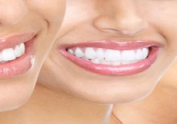 لبخند زیبا