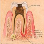 جراحی ریشه دندان