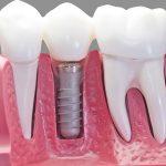مشکلات احتمالی بعد از ایمپلنت دندان